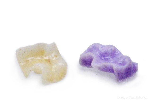 Zahninlay aus Keramik links , rechts blau im Rohzustand